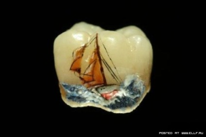 hot_weird_funny_amazing_cool4_dental-teeth-art-15_200907302006406570