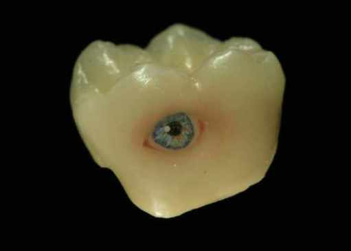 sun-tattoo-tooth-teeth-81669